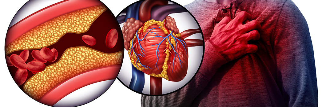 aspiryna kardiologiczna
