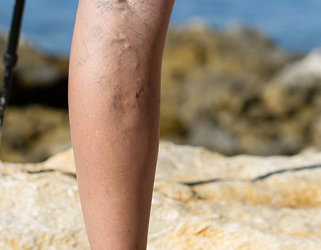 niewydolność żylna nóg